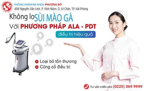 ALA-PDT là phương pháp chữa sùi mào gà tiên tiến nhất hiện nay