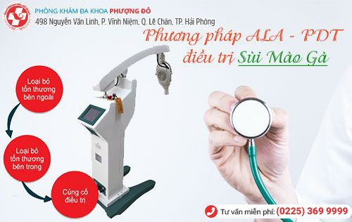 ALA - PDT - phương pháp chữa sùi mào gà hiệu quả