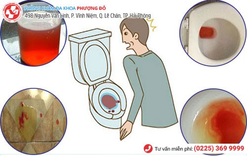 Tiểu buốt ra máu ở nam nữ do nhiều nguyên nhân gây nên