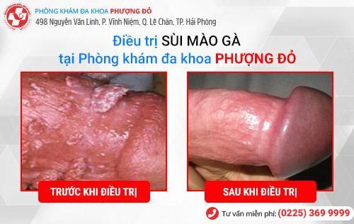 Hình ảnh trước và sau khi điều trị sùi mào gà