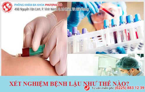 Xét nghiệm máu - 1 xét nghiệm bệnh lậu cho kết quả chính xác