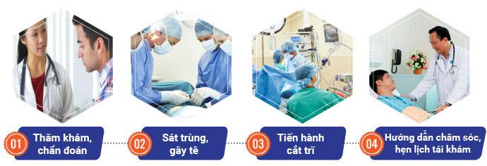 Quy trình cắt trĩ