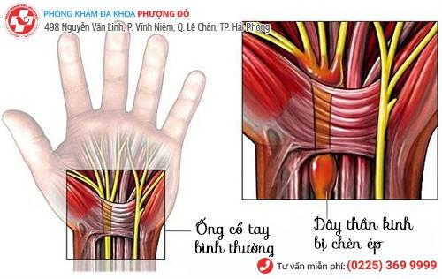 dấu hiệu hội chứng ống cổ tay