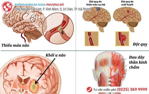 nguyên nhân đau đầu bên phải